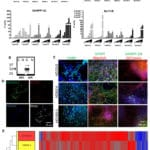 Induced Pluripotent Stem Cells from Patients with Huntington's Disease ShowCAG-Repeat-Expansion-Associated Phenotypes